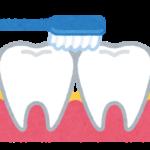 虫歯や歯周病の予防や治療をするには?